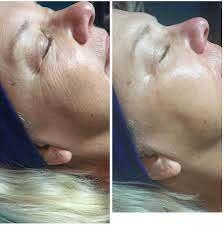 Cryo-facial image 3